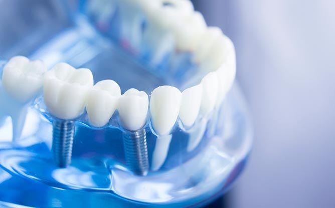El aumento de la esperanza de vida dispara los implantes dentales en España